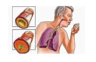 Надсадный кашель
