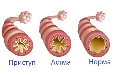 бронхиальная астма что такое псв