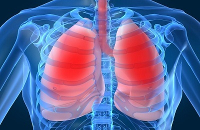 simptom legkie pnevmoniya