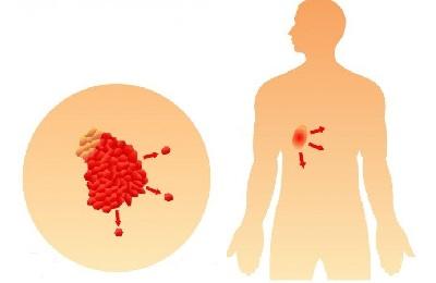 Болят связки плечевого сустава чем лечить