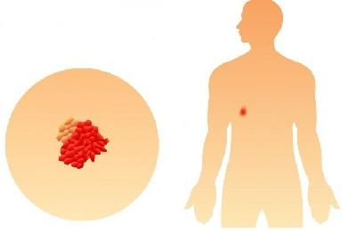 Раковая опухоль