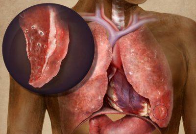 Цирротический туберкулез