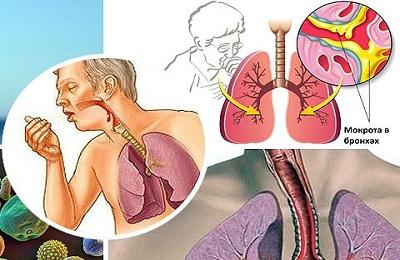 Методы лечения - ингаляции, антибиотики и отхаркивающие.