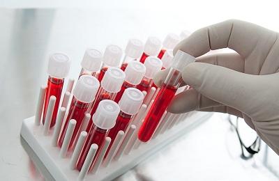 Проверка крови