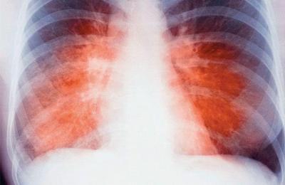 Снимок рентгеновский