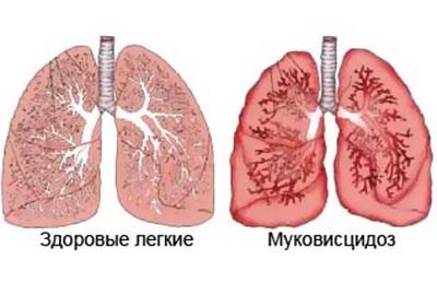 Респираторный муковисцидоз