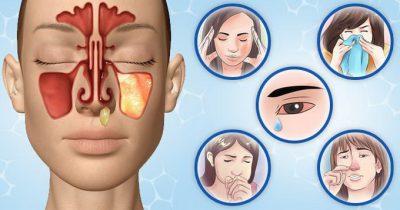 Вазомоторный синусит