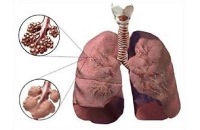 Диффузная эмфизема легких: прогноз жизни, причины ...