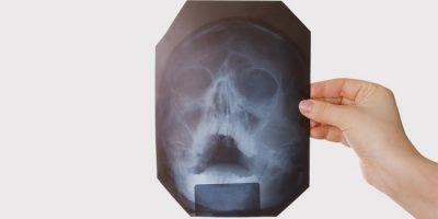 Почему появляется храп конкретные причины и пути лечения