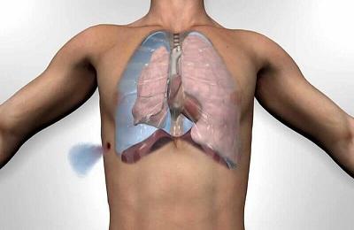 Повреждение грудины