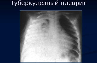 Рентген легкого