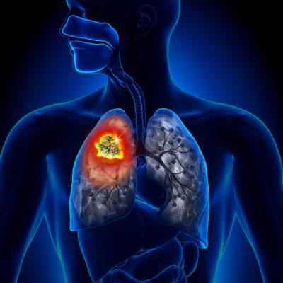 Болезни легких