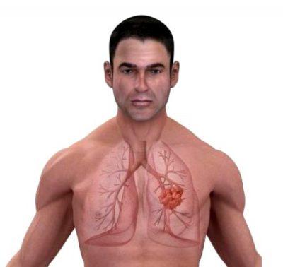 Фиброз легких: симптомы, причины, диагностика и лечение ...