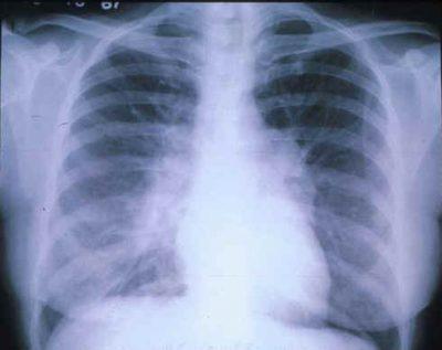 Снимок рентген