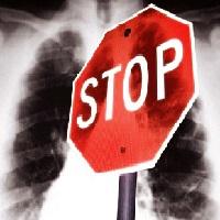 Стоп туберкулез
