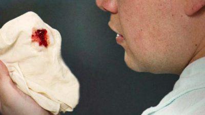 Кровь на платке