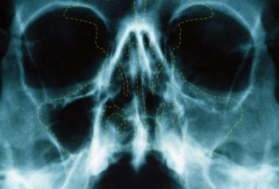 Снимок пазух носа