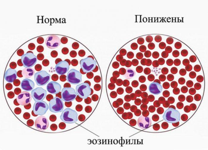 Показатели эозинофилов