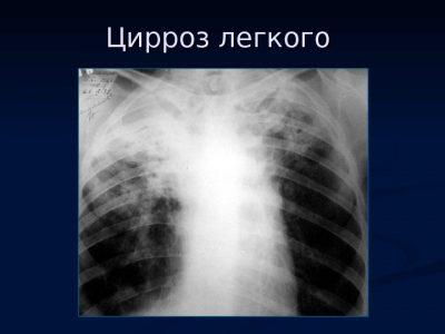 Цирроз легкого