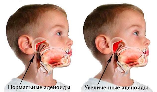 Аденоиды у детей