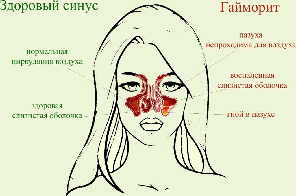 Отличия здорового и поражённого гайморитом синуса