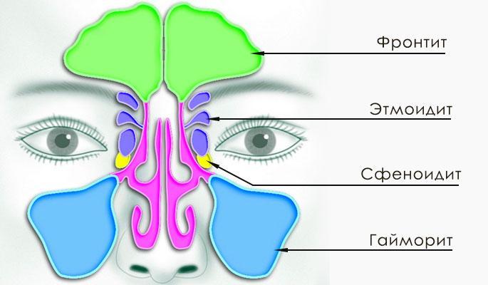 Воспаление пазух носа
