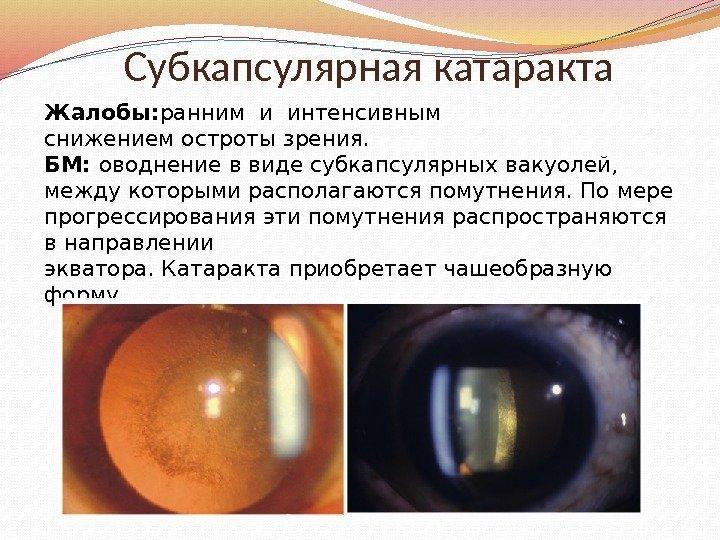 Субкапсулярная катаракта