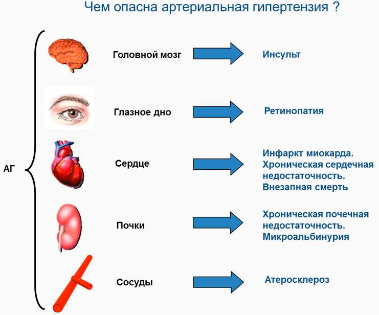 Лечения артериальной гипертензии