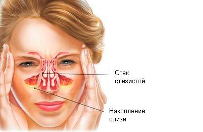 Воспаление в носовых пазухах