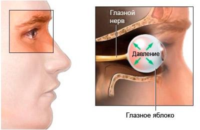 Повышение внутриглазного давления