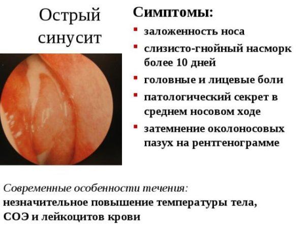 Симптомы острого синусита