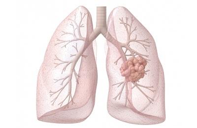 Параканкрозная пневмония - что это такое?
