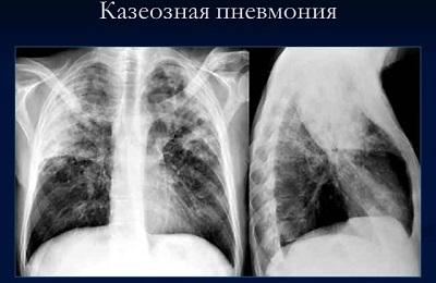 Пневмония, инфаркт легкого: особенности заболевания, основные причины, симптомы, диагностические исследования, методы терапии, профилактические меры