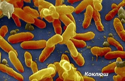 Бактерии коклюша