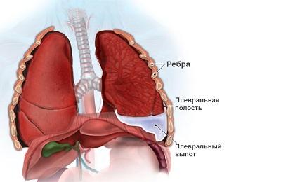 Жидкость в легких при пневмонии