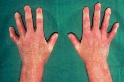 лимитированная склеродермия