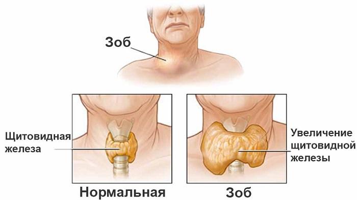 Увеличение щитовидки