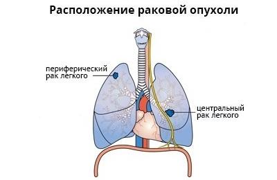 Размещение опухоли