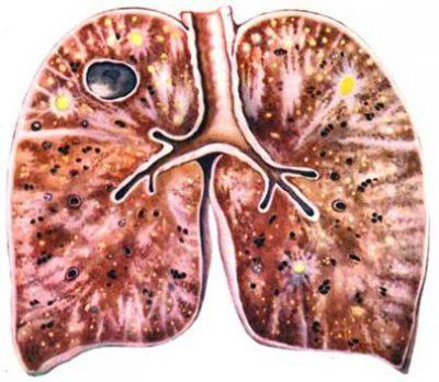 подострый диссеминированный туберкулез