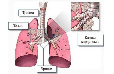 Лечение рака легких 4 степени