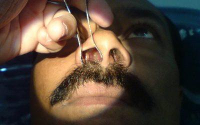 Народные средства от полипов в носу как лечить и избавиться без операции