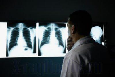 флюорография и рентген