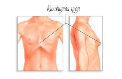 Килевидная грудь