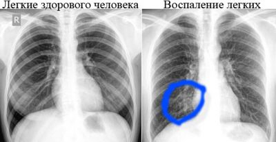 Рентген здоровых легких