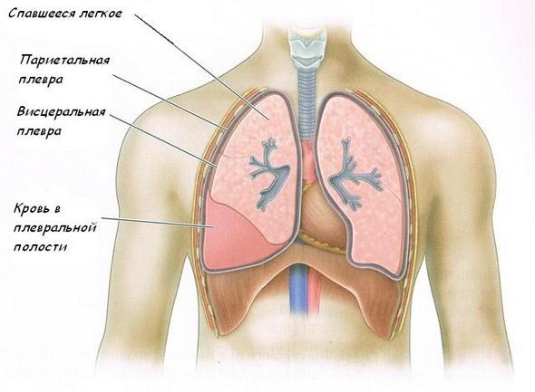 Скопление крови в плевральной полости при гемотораксе