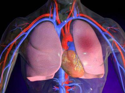 Гипертензия артерий
