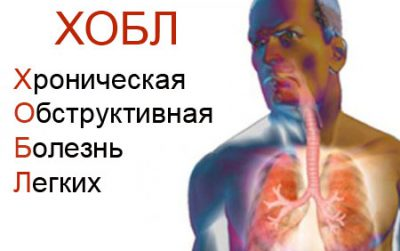 Хроническая обструктивная болезнь легких (ХОБЛ): что это такое и как лечится ХОБЛ?