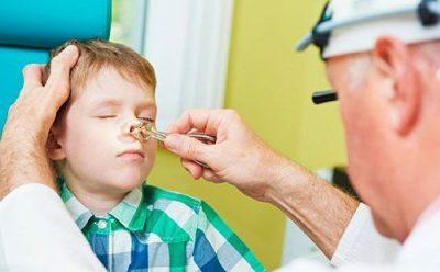 Задний ринит у ребенка симптомы
