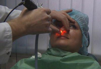 Преимущества лазерной терапии