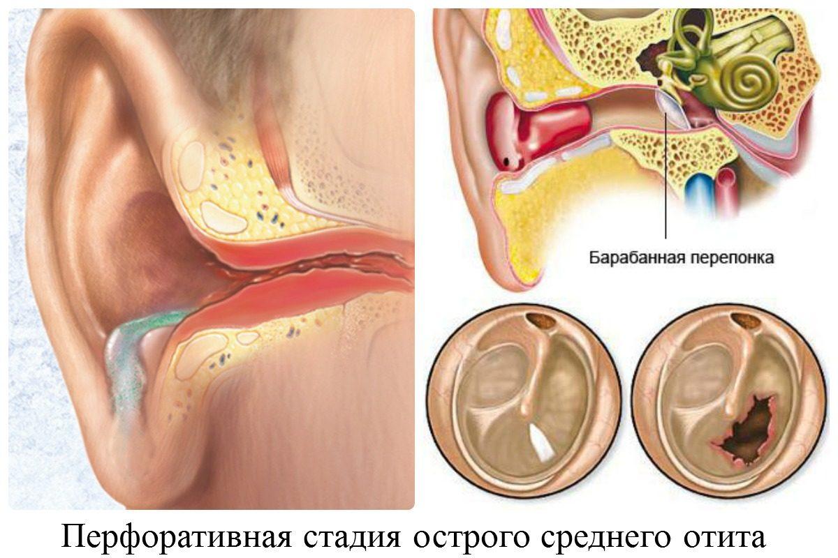 Симптомы перфорации барабанной перепонки